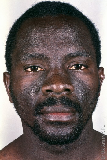 MODEL RELEASED. AIDS man with dermatitis.  Man's face showing seborrhoeic dermatitis. Dermatitis is the inflammation of the skin, seborrhea is the abnormal discharge of sebum producing an oily skin that can form greasy scales. AIDS (acquired immune deficiency syndrome) is a disease caused by the human immunodeficiency virus (HIV). It causes weakening of the immune system, making the patient susceptible to opportunistic infections and making normally harmless infections life threatening. This disorder has developed as an AIDS-related complex (ARC), a precursor to full AIDS. In Africa lack of access to drugs and information makes AIDS a major public health concern.