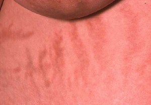 Cushing's x¦Cushing's syndrome stretch marks. View of stretch marks beneath the breast of a woman suffering from Cushing's syndrome. This condition results from excess corticosteriod hormones in the body. It may be caused by overstimulation of the adrenal glands due to excessive amounts of the hormone ACTH (adrenocorticotrophic hormone) secreted by a tumour of the pituitary gland (Cushing's disease). The majority of cases, however, are caused by prolonged use of corticosteroid drugs, used to control inflammation. Symptoms include obesity, abnormal body hair growth, raised blood pressure and osteoporosis. Treatment depends on the cause, either cessation of drug