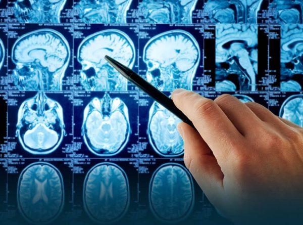 El nuevo coronavirus también podría causar efectos neurológicos   Campus de  RedEMC.net